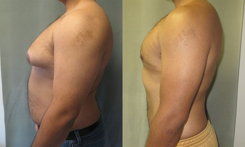 How much gynecomastia surgery cost?