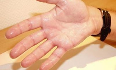 Hypohidrosis – what are the causes and treatment