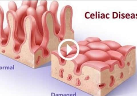 Celiac-Disease