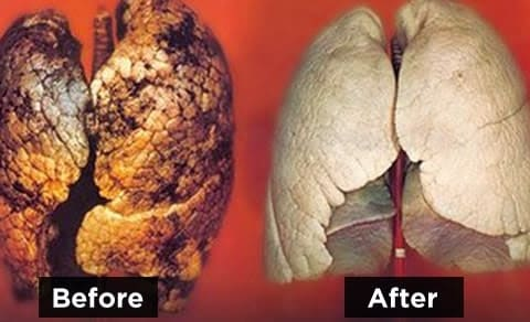 lungs-after-smoking