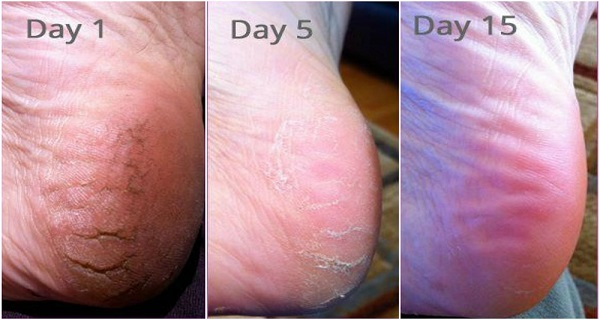 after-doing-this-you-will-never-suffer-from-cracked-heels-corns-and-calluses-again