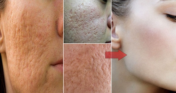 It-Only-Takes-1-Ingredient-To-Remove-Pores-On-Your-Face-At-Home