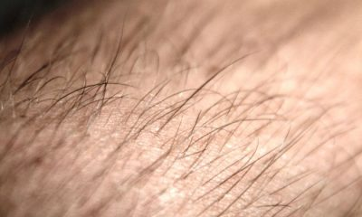 Finding the right hair loss clinic