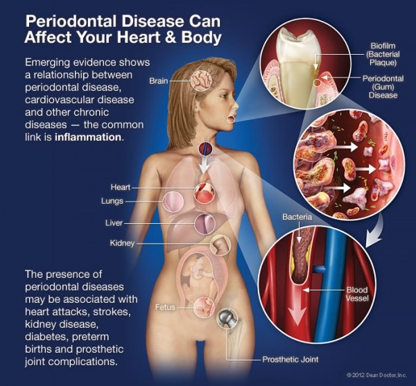 bacteria-from-root-canals-may-worsen-other-diseases-e1434033562362