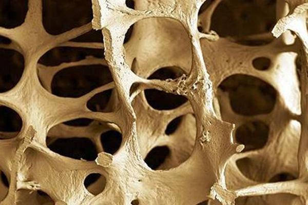 Know the risks and dangers of osteoporosis