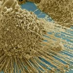 Chemotherapy Can Cause Healthy Cells to Feed Growth of Cancer Tumors