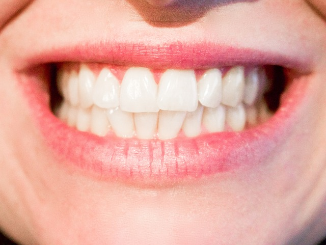 5 tips to have healthy teeth