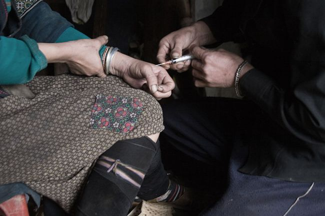 Treatments to overcome heroin addiction