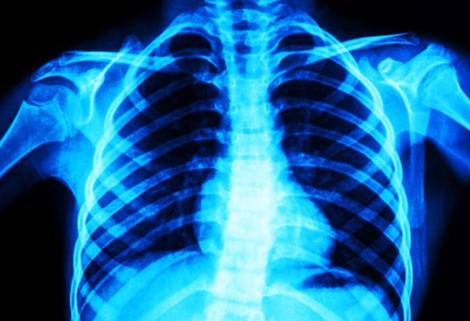 5 Ways to Improve Your Respiratory Health During the Pandemic 1