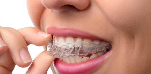 Five benefits of invisalign dental aligners for adults