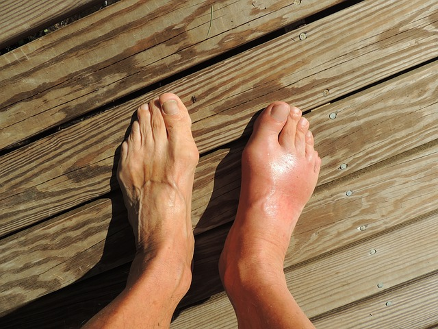Information about gout and its remedies