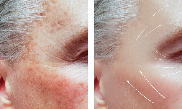 Causes, diagnosis, and treatment of hyperpigmentation
